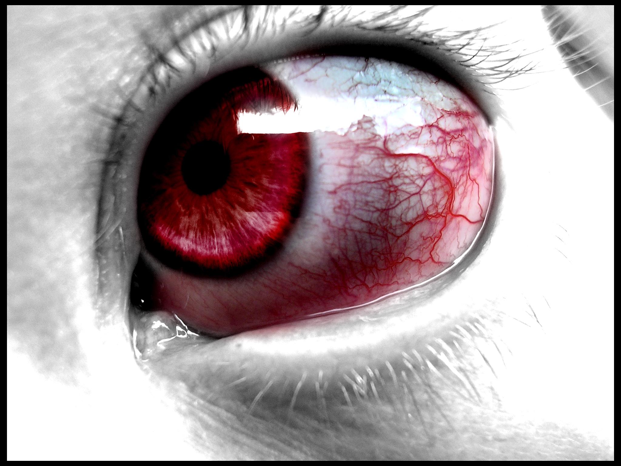 Evil_eye_by_Bedlam_baby